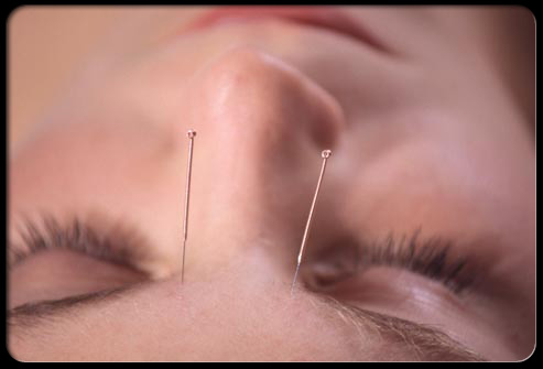 acupuncture-s5-photo-of--needles-in-forehead(2)